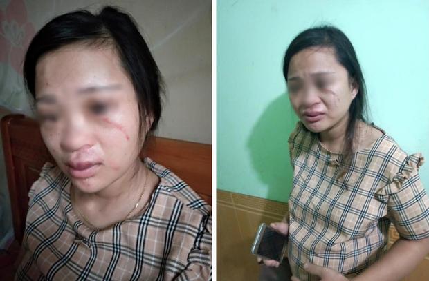 Gã chồng đánh vợ đang mang bầu vì mua hàng online không xin phép nói gì?