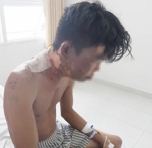 Nam thanh niên tố bị chị ruột tạt nước sôi vào người: Cha mẹ ruột hé lộ nguyên nhân
