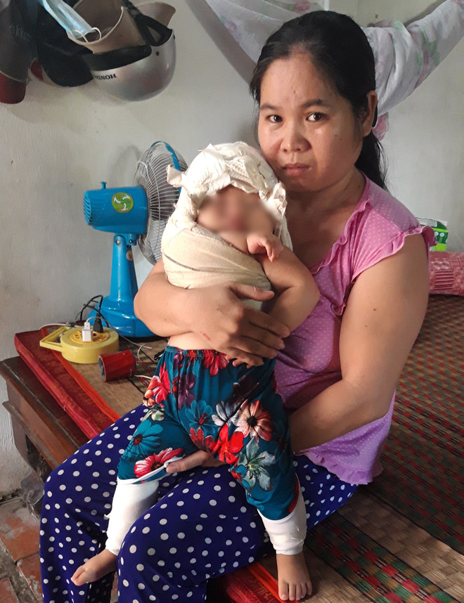 Thực hư bác sĩ bị tố khiến bé gái sơ sinh 4,1kg 'đứt dây chằng cánh tay'
